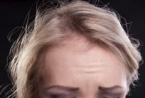 Tagli capelli per capelli fini e radi